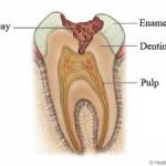 दांतों की सड़न – कारण, लक्षण, बचाव व उपचार
