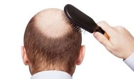 कैसे रोकें बालों का झाड़ना How to prevent hair loss in Hindi