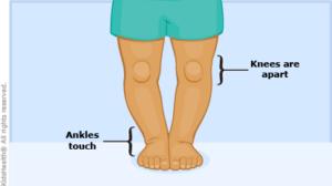 Vitamin D Deficiency Symptoms Cause Treatment in Hindi विटामिन डी की कमी