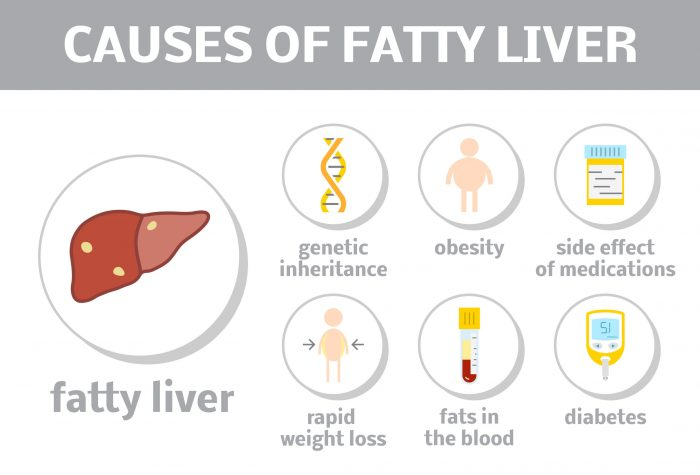 Fatty Liver Causes in Hindi