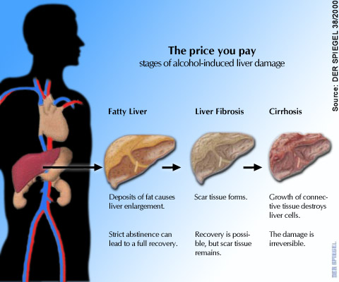 Fatty Liver Symptoms Causes And Treatment in Hindi