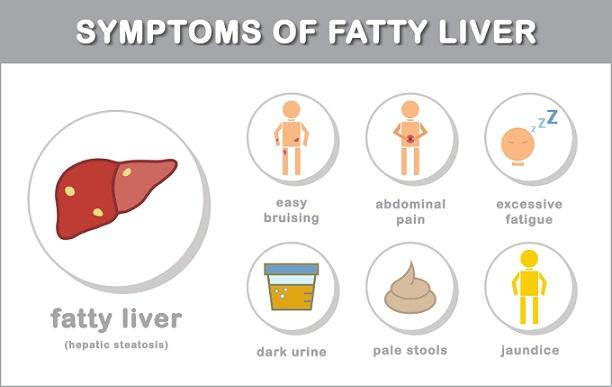 फैटी लिवर : लक्षण कारण बचाव व उपचार