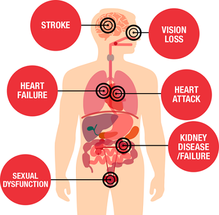 Harmful Effects of High Blood Pressure in Hindi